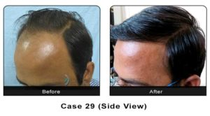 hairtransplant029a