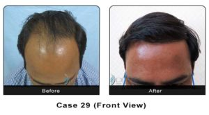 hairtransplant029b