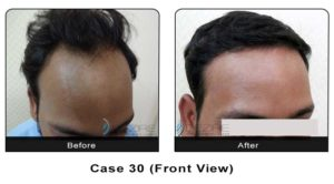 hairtransplant030a