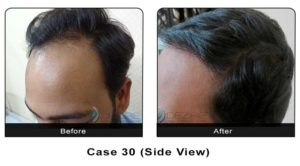 hairtransplant030b