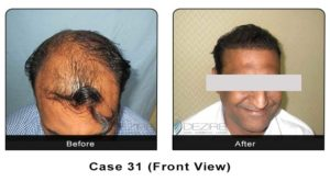 hairtransplant031
