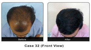 hairtransplant032a