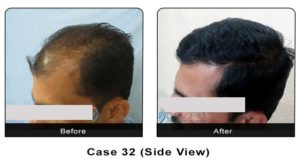hairtransplant032b