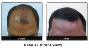 hairtransplant033