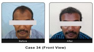 hairtransplant034