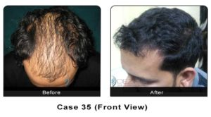 hairtransplant035