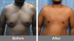 natural male breast reduction