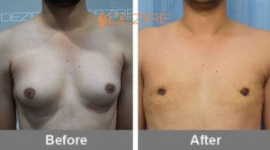 best male breast reduction surgeons