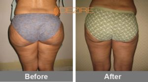 thigh liposuction cost