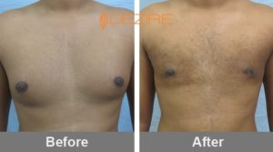 male breast reduction surgery vaser gynecomastia