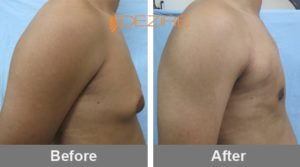 breast reduction for males