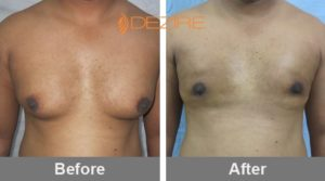 how much for male breast reduction