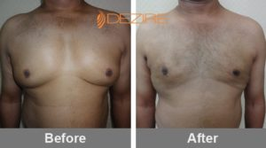male breast reduction surgery price