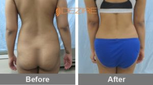 back-liposuction-cost-in-delhi vaser lipo 12 liter2-min