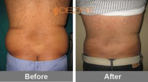 best-doctor-for-liposuction-in-delhi-india satish lipo2-min