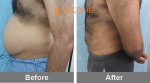 best-liposuction-in-delhi-india abhishek talapate vaser 3d chin liposuction2-min
