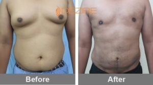 best-liposuction-surgeons-in-delhi-kaustub vaser lipo-min