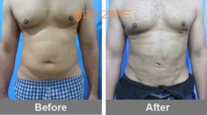 best-tummy-liposuction-surgeon-in-delhi arif khan lipo-min