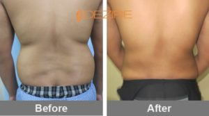 body-contouring-cost-in-delhi-india kaustub vaser lipo3-min
