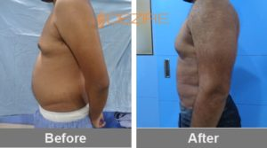chest-fat-removal-surgery-cost-in-delhi-india yash gynaecomastia + liposuction2-min