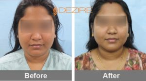 chin reduction-face-change-plastic-surgery-in-delhi-india liposuction-surgery-in-delhi aarya bouble chin lipo-min