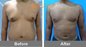 cosmetic-surgery-delhi-india yash gynaecomastia + liposuction-min