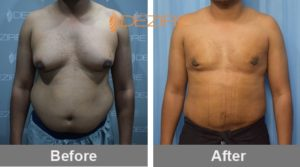 cost-of-fat-reduction-surgery-delhi- Sumit Jadhav-min
