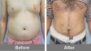 liposuction with laser