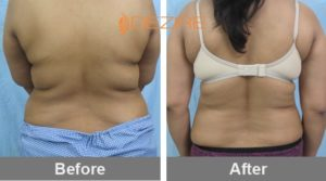 back liposuction cost