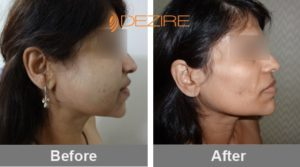 face-fat-removal-surgery-cost lipo fat transfer2 -min