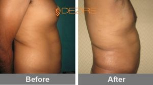 liposuction cosmetic surgery