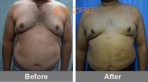 fat liposuction