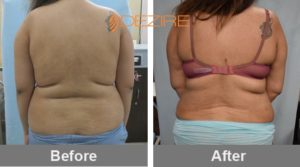 different types of liposuction