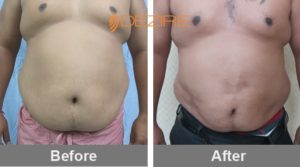 liposuction-clinic-in-delhi-kishor ahire vaser 3d lipo chest 10 L-min