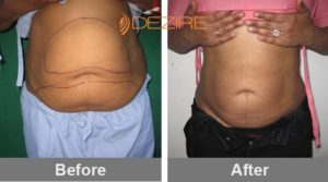 liposuction surgeon