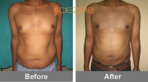 top liposuction surgeons