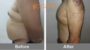 procedure for liposuction