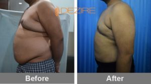 liposuction-surgery-in-india 2Arshad 17-05-17-min