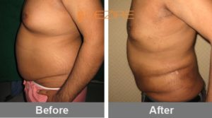 liposuction tummy