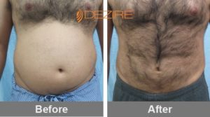 non-surgical-liposuction abhishek talapate vaser delhi 3d chin liposuction-min