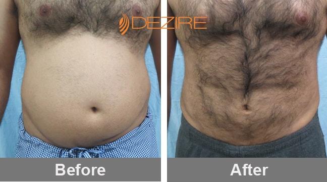 Tummy Tuck Abdominoplasty Surgery View Cost Dezire Clinic