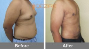 liposuction of stomach