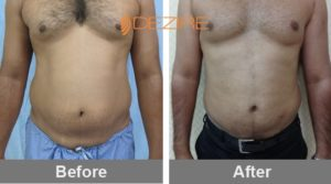 non-surgical-liposuction-in-delhi rahul borade vaser lipo abdomen-min