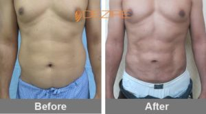 stomach-liposuction-cost-in-delhi-india dr pawar abdo 3 d vaser lipo-min