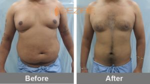 stomach liposuction