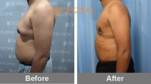 tummy-tuck-surgery-cost-in-delhi-india Sumit Jadhav2-min