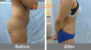 tummy-tuck-surgery-price-in-delhi-india vaser lipo 12 liter3-min