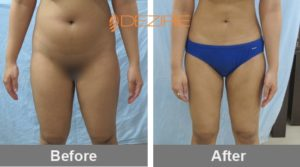 liposuction on thighs