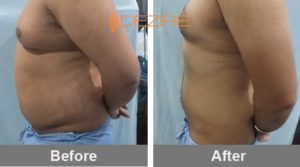 stomach liposuction cost