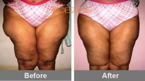 whole-body-liposuction-cost lipo thigh-min
